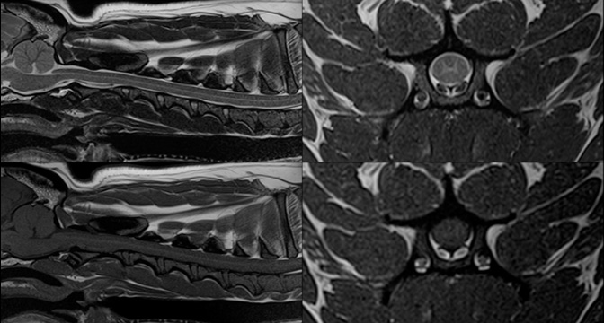 脊髄MRI
